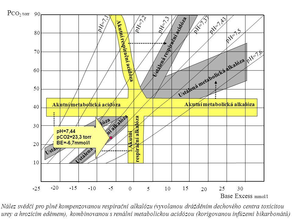 -25 -20 -15 -10 -5 0 5 10 15 20 25 30 10 20 30 40 50 60 70 80 90 P CO 2 torr Base Excess mmol/l pH=7,1 pH=7,2 pH=7,3 pH=7,37 pH=7,43 pH=7,5 pH=7,6 Akutní metabolická acidóza Akutní metabolická alkalóza Akutní respirační alkalóza Akutní respirační acidóza Ustálená metabolická alkalóza Ustálená metabolická acidóza Ustálená respirační alkalóza Ustálená respirační acidóza pH=7,44 pCO2=23,3 torr BE=-6,7mmol/l Nález svědčí pro plně kompenzovanou respirační alkalózu (vyvolanou drážděním dechového centra toxicitou urey a hrozícím edémem), kombinovanou s renální metabolickou acidózou (korigovanou infúzemi bikarbonátů)