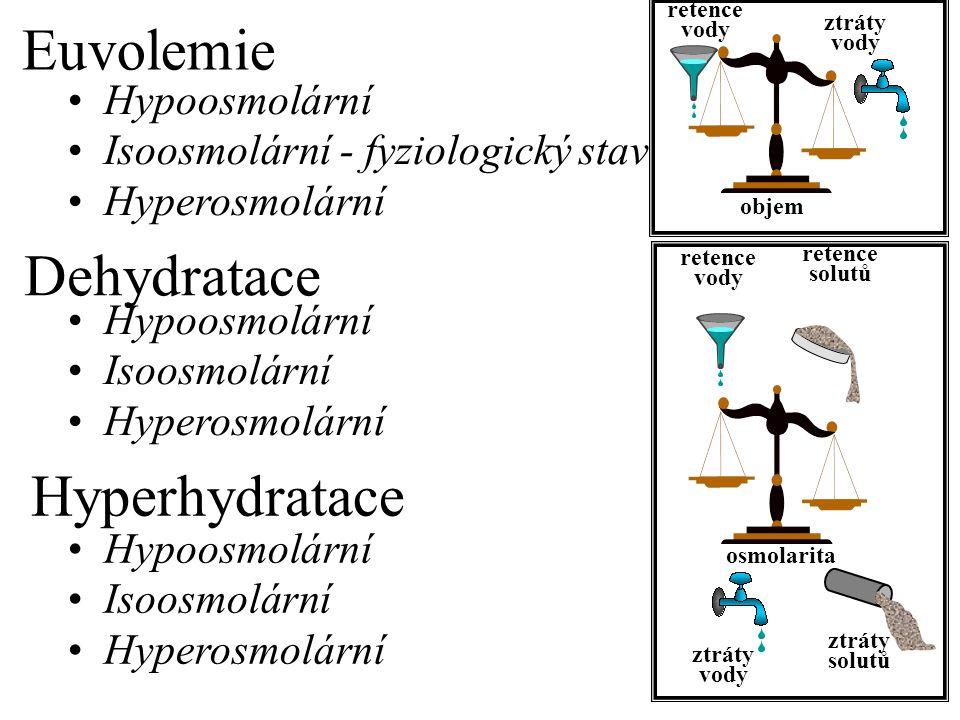 Hypoosmolární dehydratace Hypoosmolární hyperhydratace Hyperosmolární dehydratace Isoosmolární hyperhydratace Isoosmolární dehydratace Euvolemická hyperosmolarita ztráta vody > ztráta solí ztráta vody < ztráta solí ztráta vody = ztráta solí příjem vody > příjem solí retence solí příjem vody = příjem solí Euvolemická hypoosmolarita Hyperosmolární hyperhydratace příjem vody < příjem solí ztráta solí