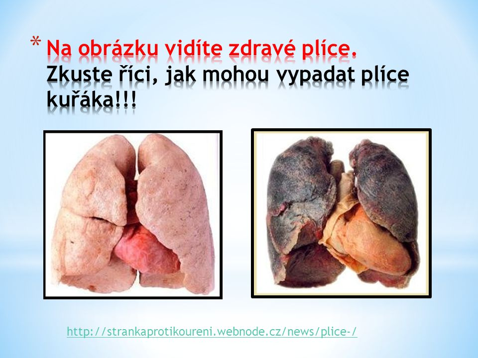 http://strankaprotikoureni.webnode.cz/news/plice-/