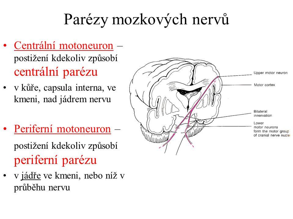 Parézy mozkových nervů Centrální motoneuron – postižení kdekoliv způsobí centrální parézu v kůře, capsula interna, ve kmeni, nad jádrem nervu Perifern