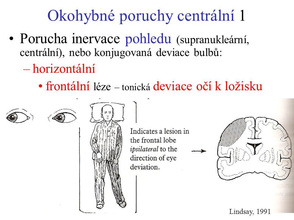 Okohybné poruchy centrální 1 Porucha inervace pohledu (supranukleární, centrální), nebo konjugovaná deviace bulbů: –horizontální frontální léze – toni