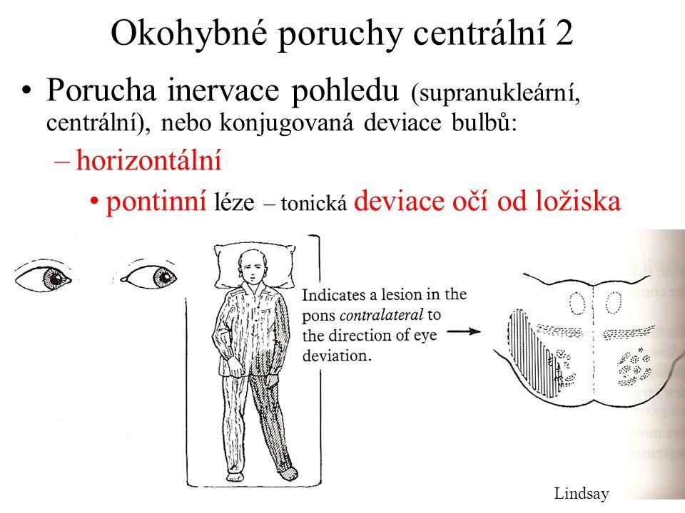 Okohybné poruchy centrální 2 Porucha inervace pohledu (supranukleární, centrální), nebo konjugovaná deviace bulbů: –horizontální pontinní léze – tonic