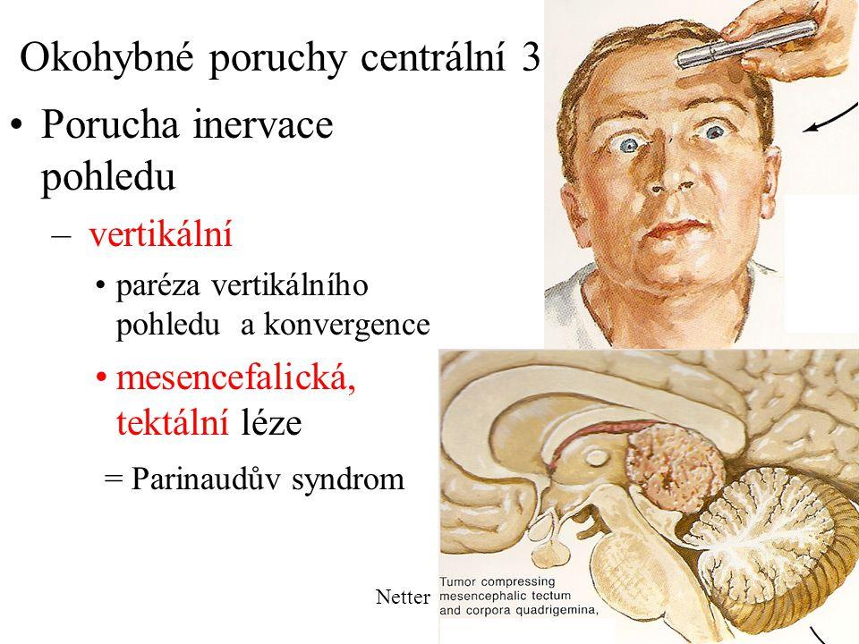 Okohybné poruchy centrální 3 Porucha inervace pohledu – vertikální paréza vertikálního pohledu a konvergence mesencefalická, tektální léze = Parinaudů