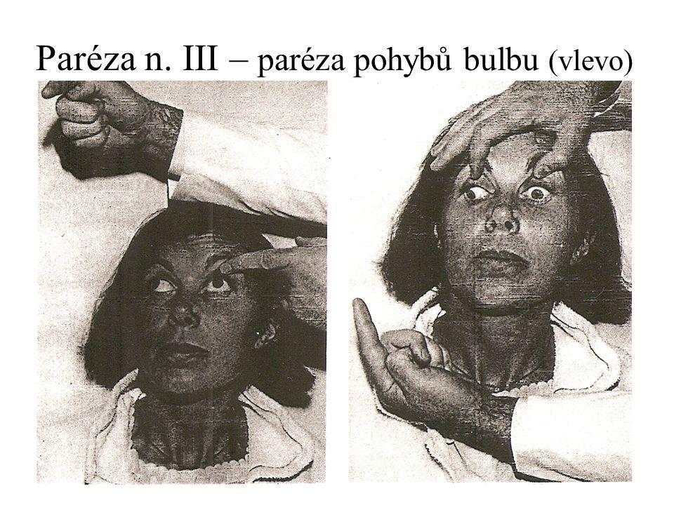 Paréza n. III – paréza pohybů bulbu (vlevo)