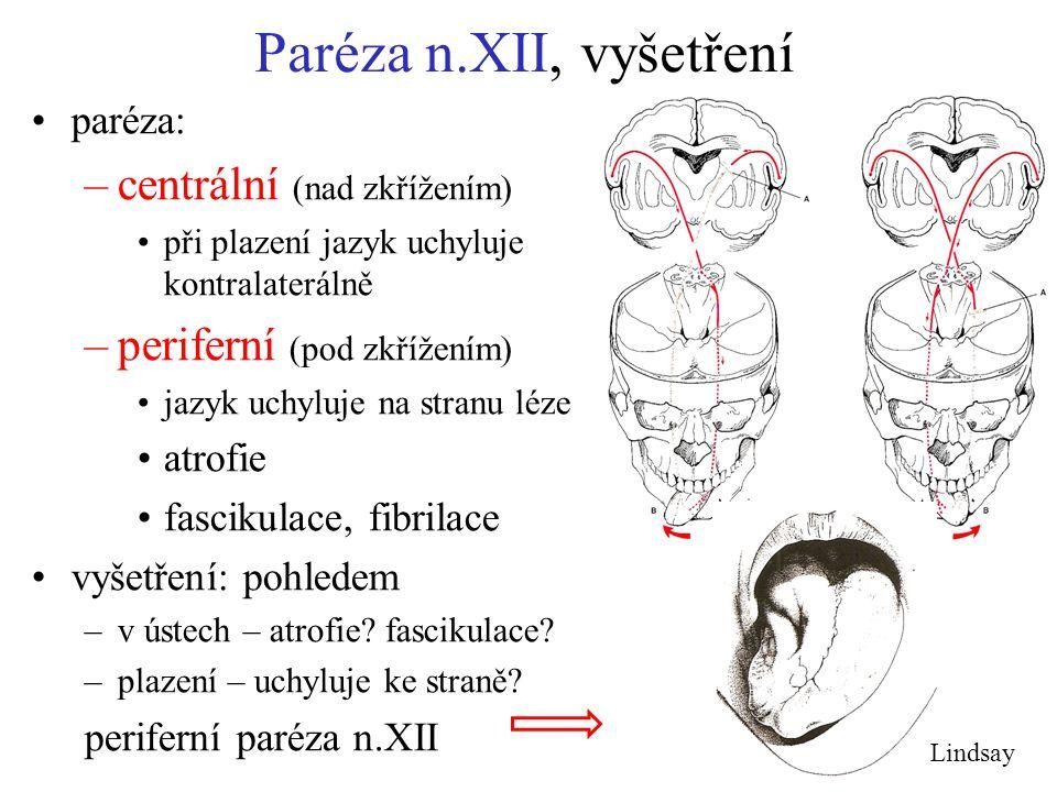 Paréza n.XII, vyšetření paréza: –centrální (nad zkřížením) při plazení jazyk uchyluje kontralaterálně –periferní (pod zkřížením) jazyk uchyluje na str