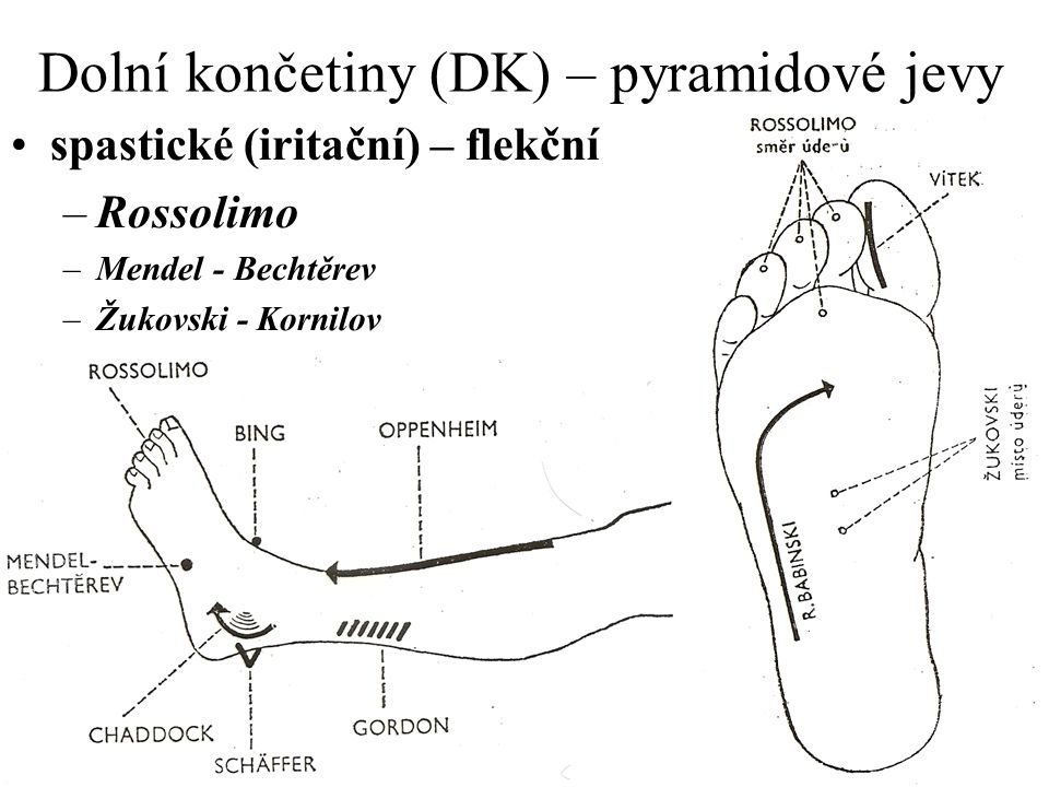 Dolní končetiny (DK) – pyramidové jevy spastické (iritační) – flekční –Rossolimo –Mendel - Bechtěrev –Žukovski - Kornilov