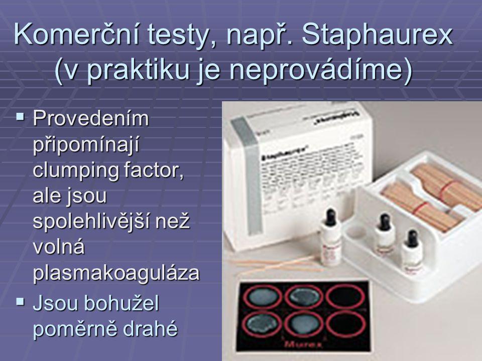 Komerční testy, např.