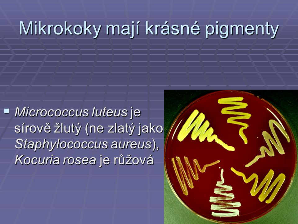 Mikrokoky mají krásné pigmenty  Micrococcus luteus je sírově žlutý (ne zlatý jako Staphylococcus aureus), Kocuria rosea je růžová