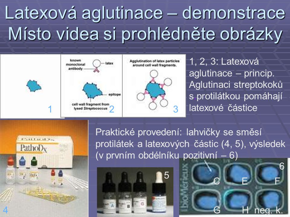 Latexová aglutinace – demonstrace Místo videa si prohlédněte obrázky 1, 2, 3: Latexová aglutinace – princip.