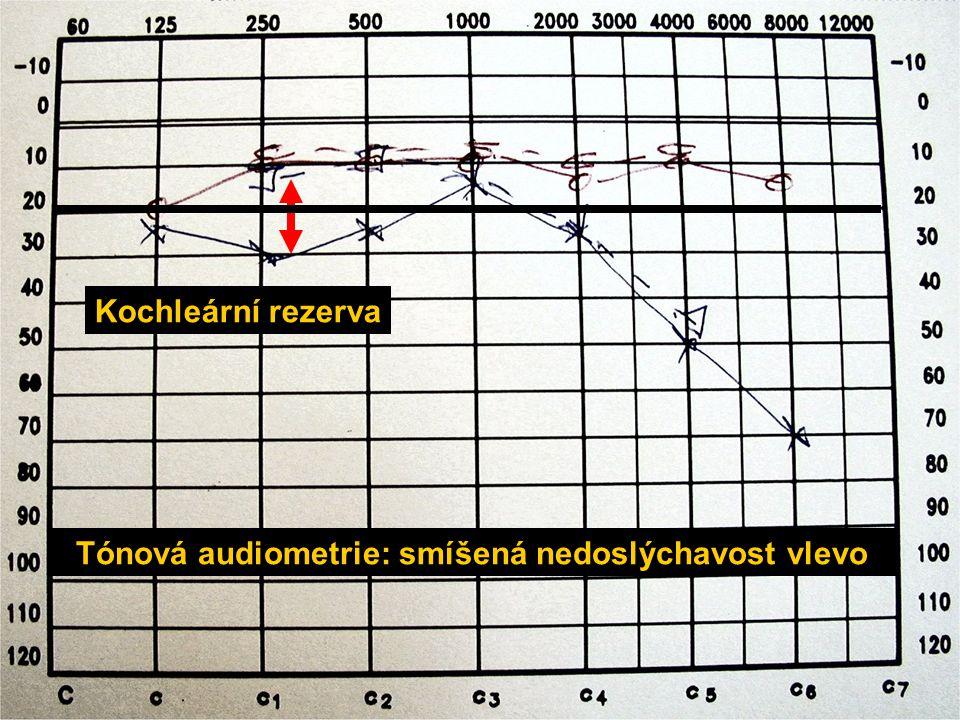 Tónová audiometrie: smíšená nedoslýchavost vlevo Kochleární rezerva