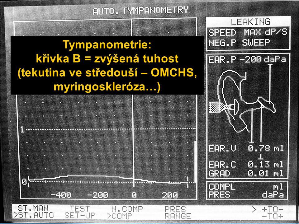 Tympanometrie: křivka B = zvýšená tuhost (tekutina ve středouší – OMCHS, myringoskleróza…)