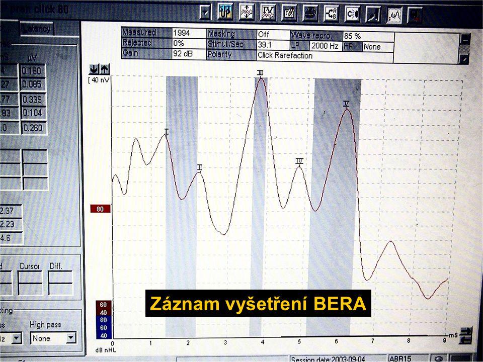 Záznam vyšetření BERA