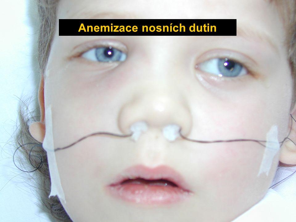 Anemizace nosních dutin