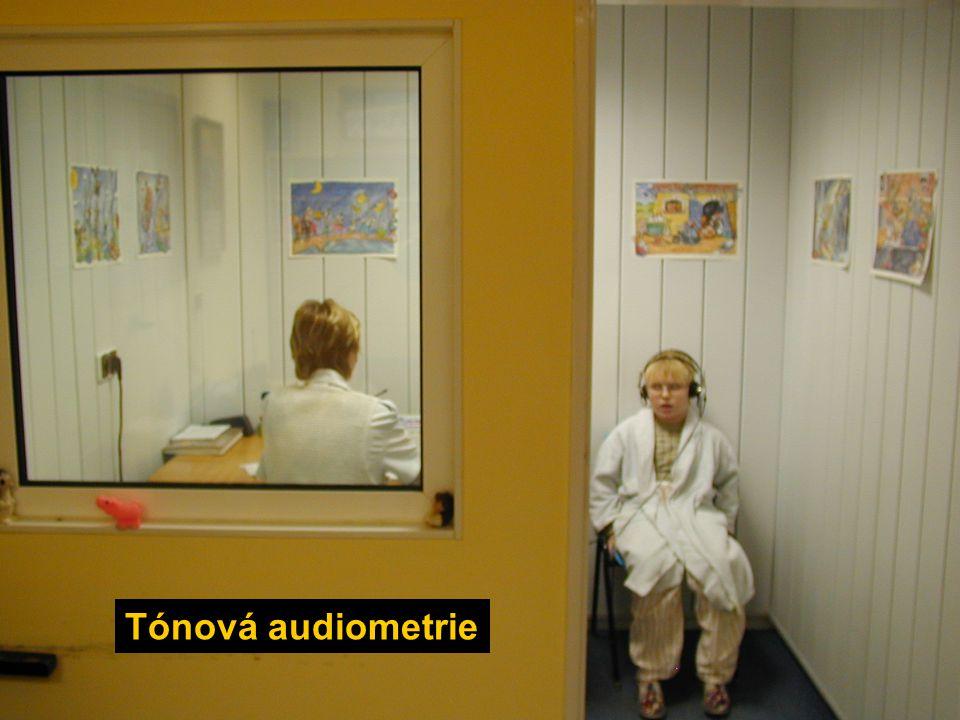 Tónová audiometrie