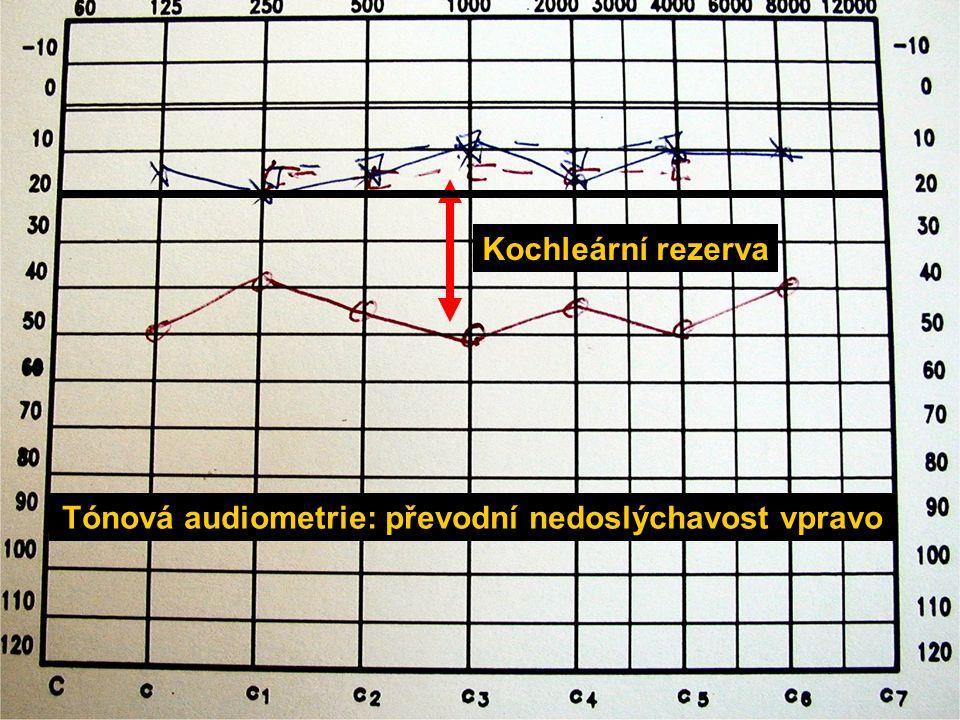 Tónová audiometrie: převodní nedoslýchavost vpravo Kochleární rezerva