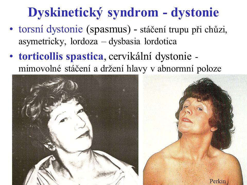 """Dyskinetický syndrom - dystonie lokalizované dystonie: tonické spasmy některých svalových skupin - –dystonie ruky, nohy –""""písařská křeč –blefarospasmus ( m."""