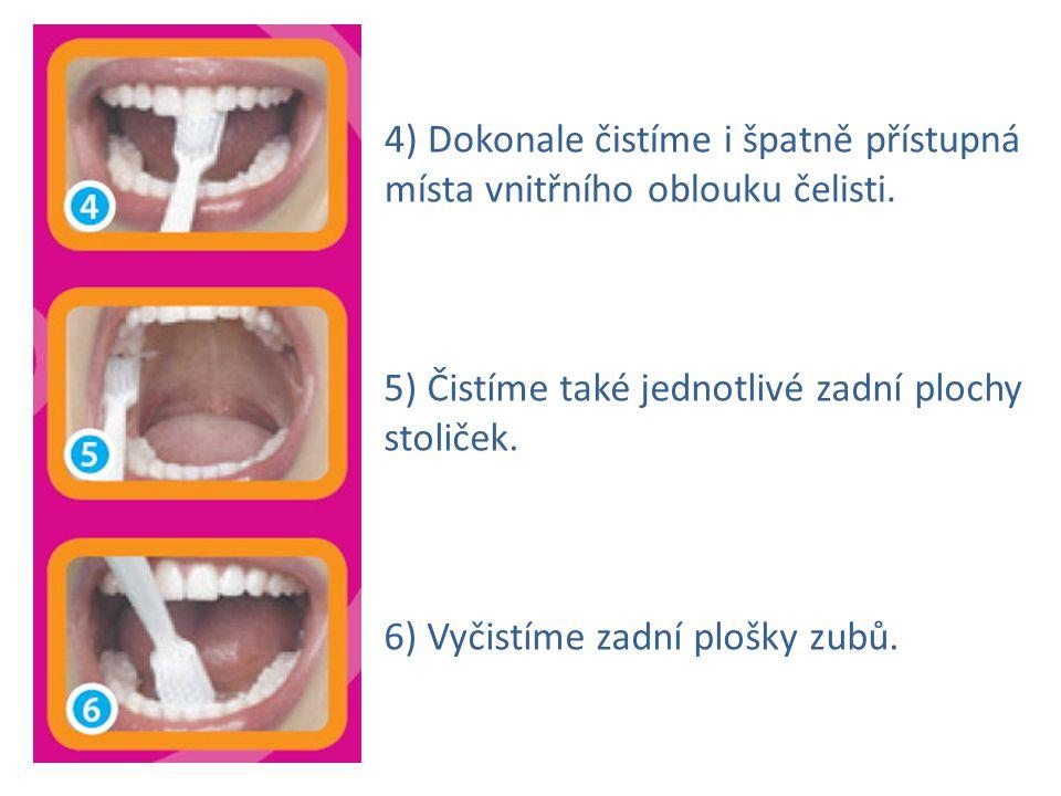 4) Dokonale čistíme i špatně přístupná místa vnitřního oblouku čelisti. 5) Čistíme také jednotlivé zadní plochy stoliček. 6) Vyčistíme zadní plošky zu