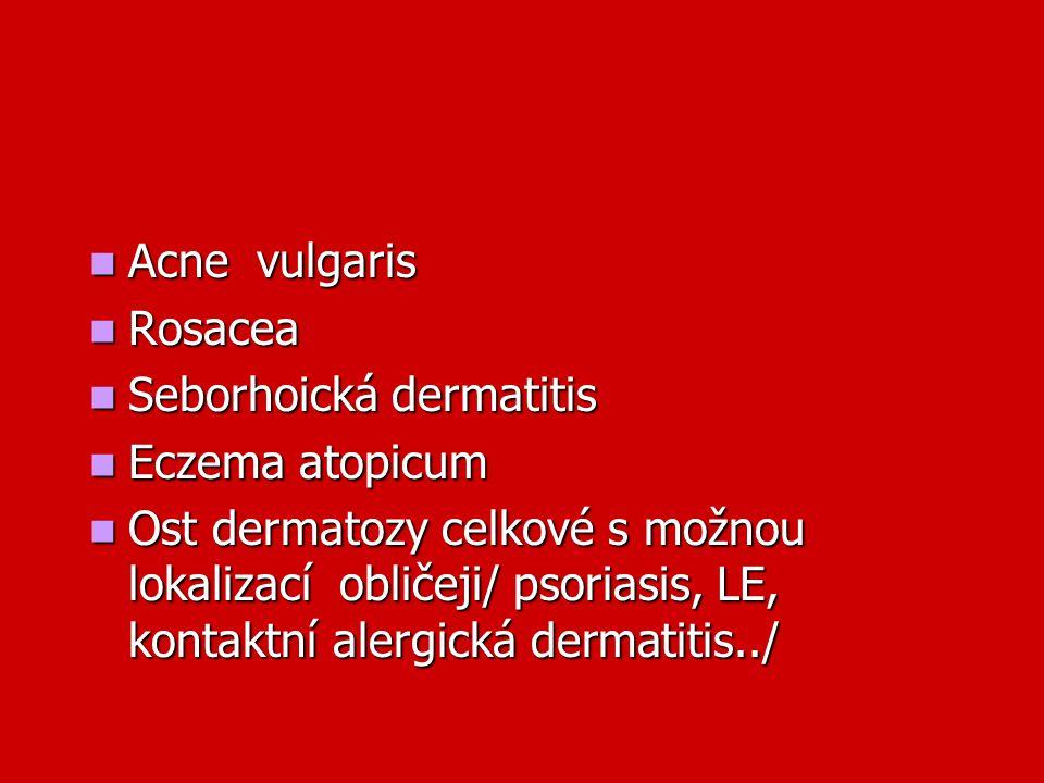 Acne vulgaris Acne vulgaris Rosacea Rosacea Seborhoická dermatitis Seborhoická dermatitis Eczema atopicum Eczema atopicum Ost dermatozy celkové s možn