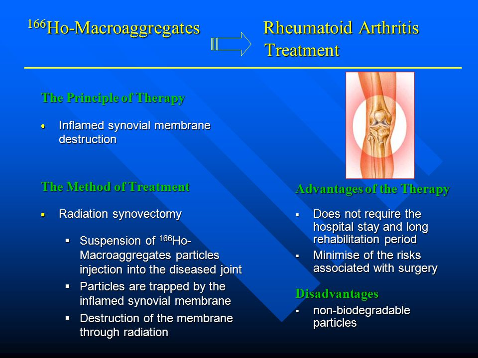 166 Ho-Macroaggregates Rheumatoid Arthritis Treatment The Principle of Therapy  Inflamed synovial membrane destruction The Method of Treatment  Radiation synovectomy  Suspension of 166 Ho- Macroaggregates particles injection into the diseased joint  Particles are trapped by the inflamed synovial membrane  Destruction of the membrane through radiation Advantages of the Therapy  Does not require the hospital stay and long rehabilitation period  Minimise of the risks associated with surgery Disadvantages  non-biodegradable particles