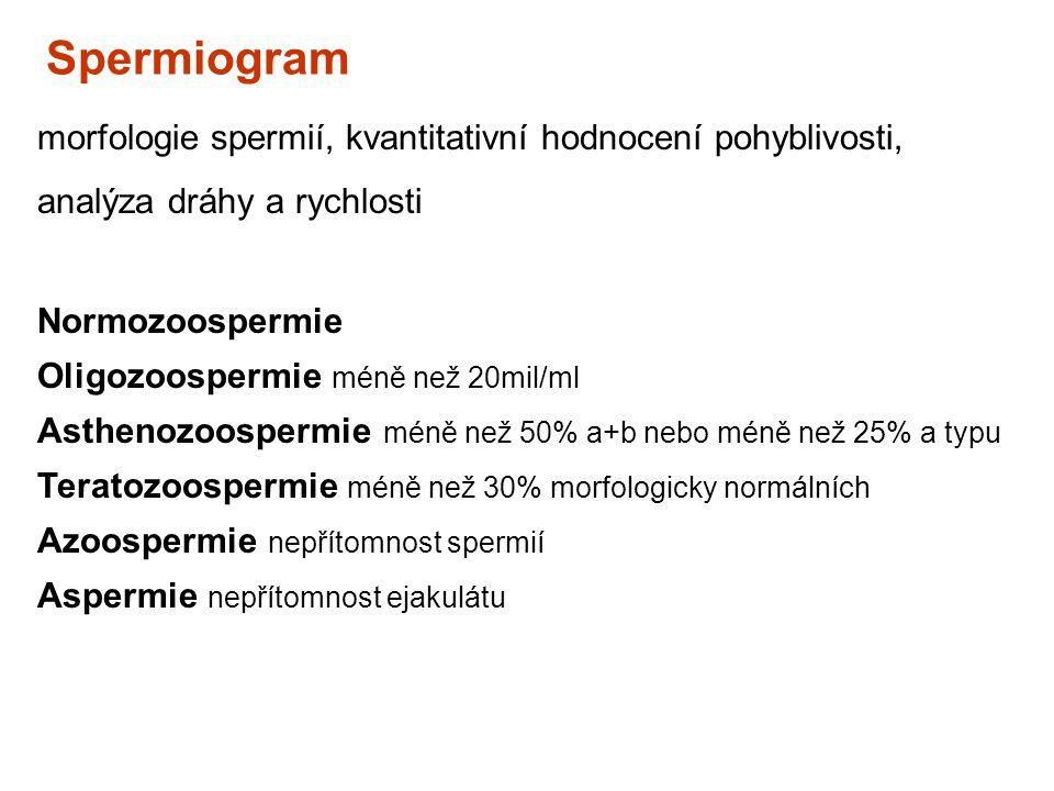 Spermiogram morfologie spermií, kvantitativní hodnocení pohyblivosti, analýza dráhy a rychlosti Normozoospermie Oligozoospermie méně než 20mil/ml Asth