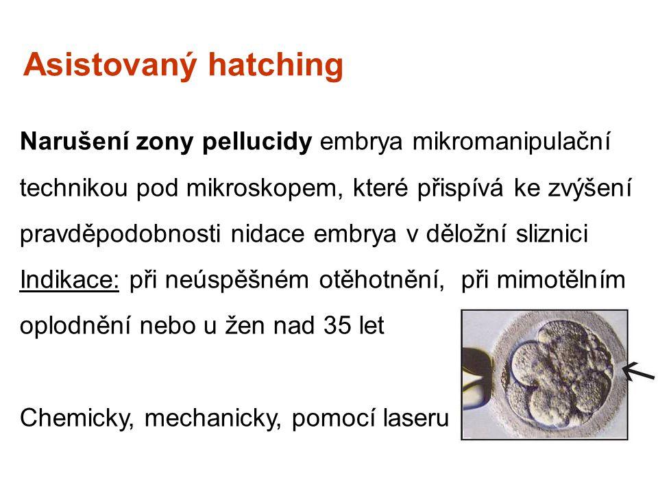 Asistovaný hatching Narušení zony pellucidy embrya mikromanipulační technikou pod mikroskopem, které přispívá ke zvýšení pravděpodobnosti nidace embry