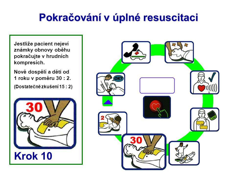 Pokračování v úplné resuscitaci Jestliže pacient nejeví známky obnovy oběhu pokračujte v hrudních kompresích. Nově dospělí a děti od 1 roku v poměru 3