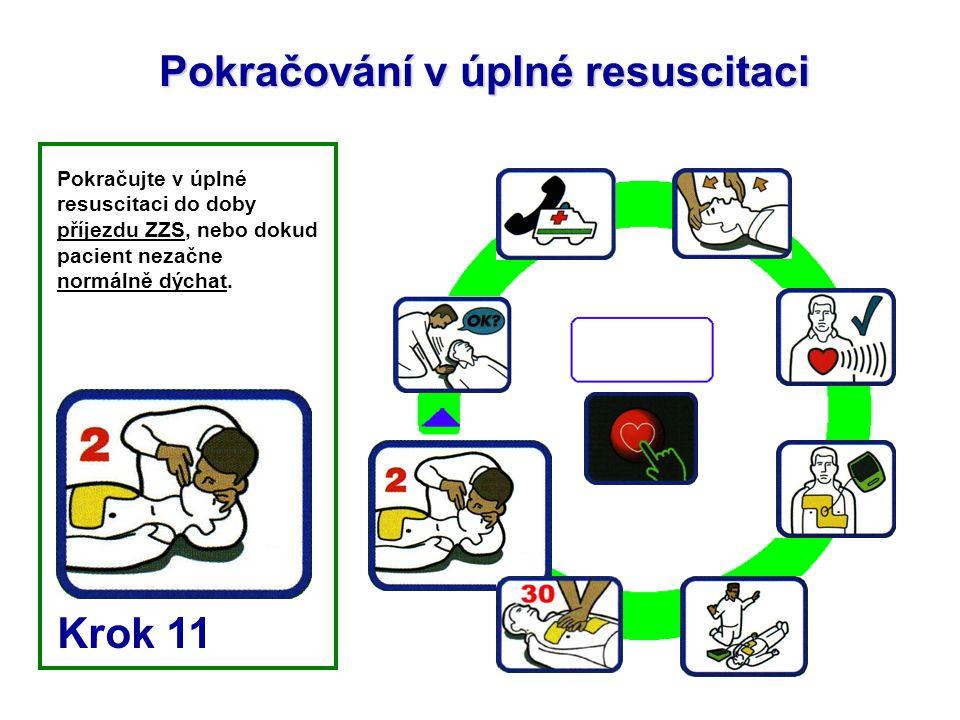 Pokračování v úplné resuscitaci Pokračujte v úplné resuscitaci do doby příjezdu ZZS, nebo dokud pacient nezačne normálně dýchat. Krok 11