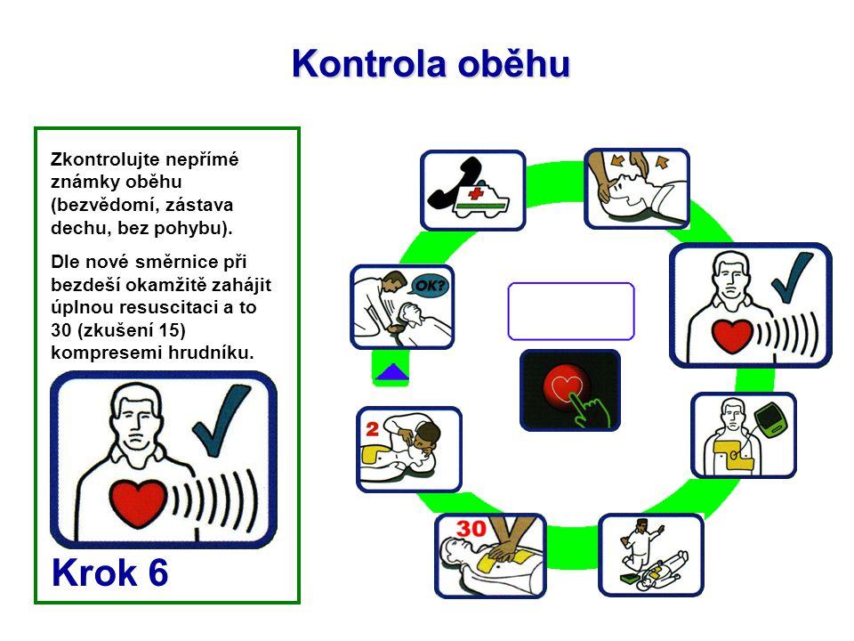 Kontrola oběhu Zkontrolujte nepřímé známky oběhu (bezvědomí, zástava dechu, bez pohybu). Dle nové směrnice při bezdeší okamžitě zahájit úplnou resusci