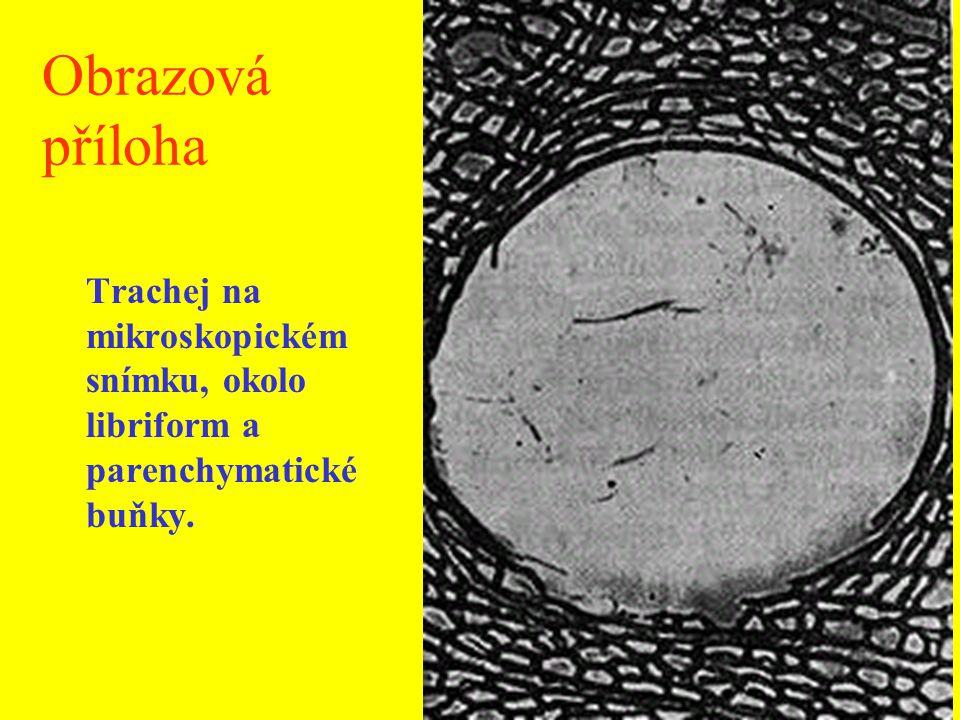 Schéma řezů mikroskopické stavby dubového dřeva L – letokruh, 1 – jarní céva, 2 – letní céva, 3 – dřevní parenchym, 4 – libriform, 5 – široký dřeňový