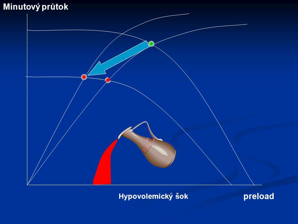 Hypovolemický šok Minutový průtok preload