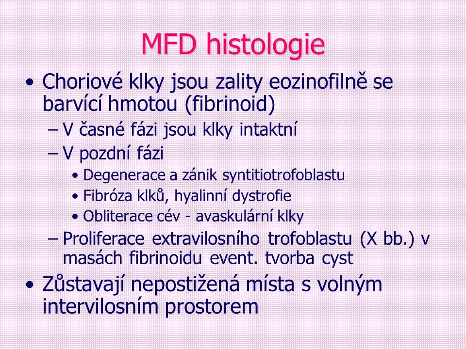 MFD histologie Choriové klky jsou zality eozinofilně se barvící hmotou (fibrinoid) –V časné fázi jsou klky intaktní –V pozdní fázi Degenerace a zánik