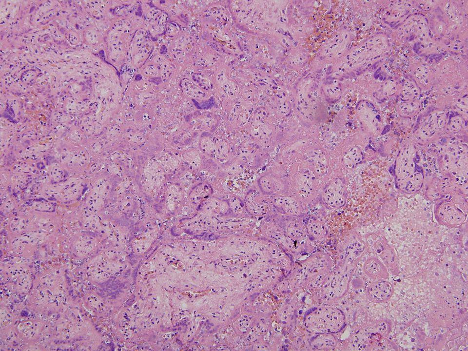 Rezidua post abortum V placentě byla zjištěna závažná patologie – masivní perivilosní depozita fibrinu (maternal floor infarkt, Gitterinfarkt).