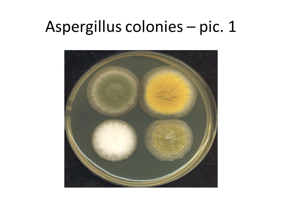 Pathogens Some Aspergillus species cause serious disease in humans and animals.