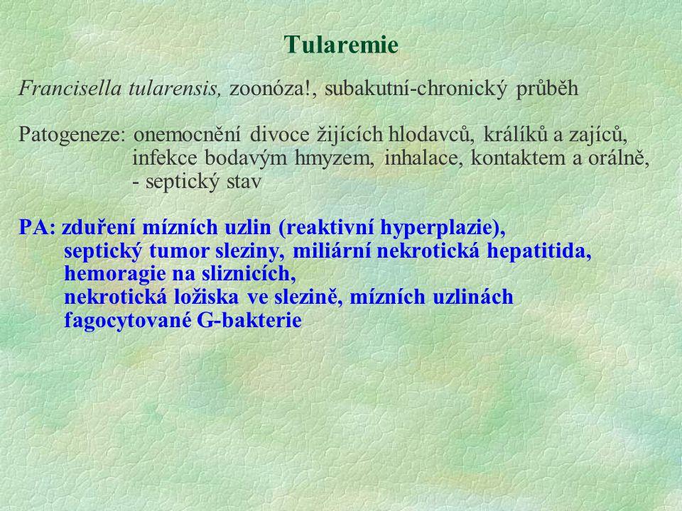 Tularemie Francisella tularensis, zoonóza!, subakutní-chronický průběh Patogeneze: onemocnění divoce žijících hlodavců, králíků a zajíců, infekce boda