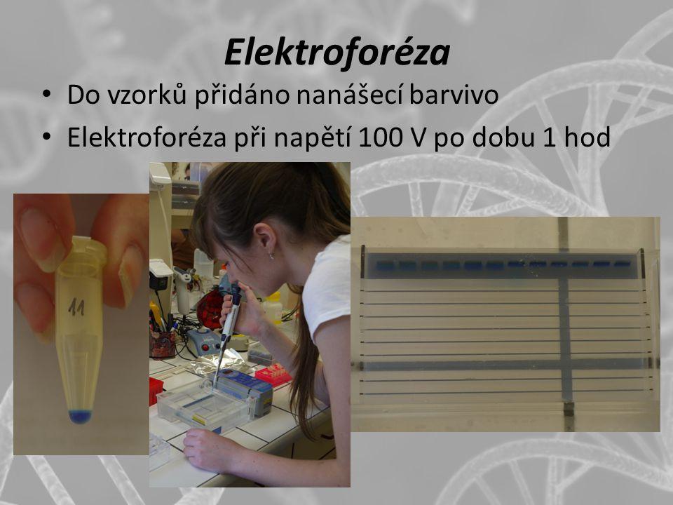 Elektroforéza Do vzorků přidáno nanášecí barvivo Elektroforéza při napětí 100 V po dobu 1 hod