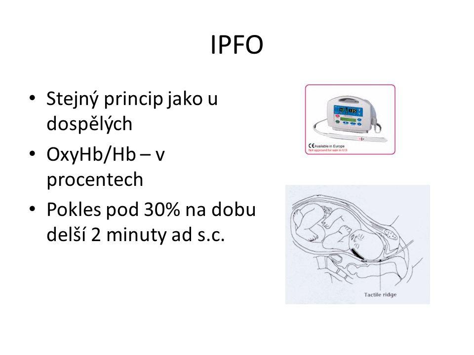 IPFO Stejný princip jako u dospělých OxyHb/Hb – v procentech Pokles pod 30% na dobu delší 2 minuty ad s.c.