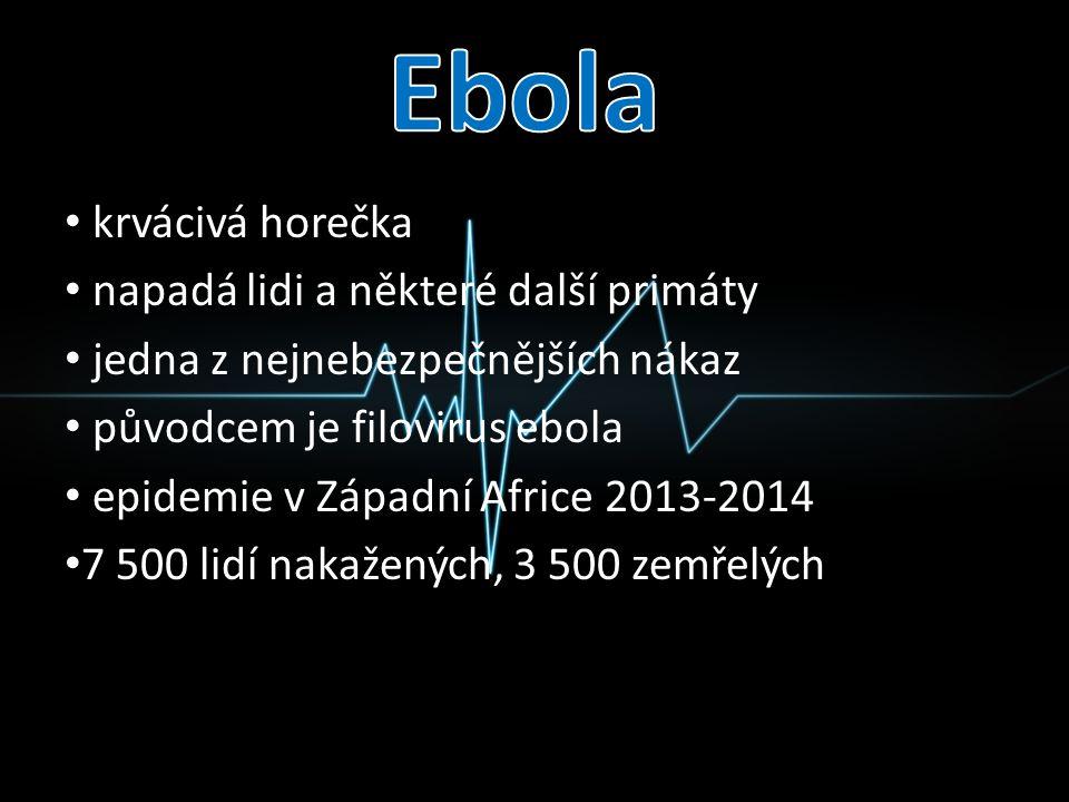 krvácivá horečka napadá lidi a některé další primáty jedna z nejnebezpečnějších nákaz původcem je filovirus ebola epidemie v Západní Africe 2013-2014