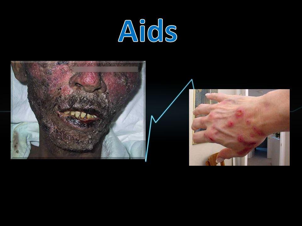 infekční nemoc tropické oblasti a subsaharská Afrika způsobená plasmodií, kterou přenáší komár rodu Anopheles projevuje se horečkou, tiky, artralgií, dávením a křečemi neléčený člověk upadá do kómatu a poté umírá