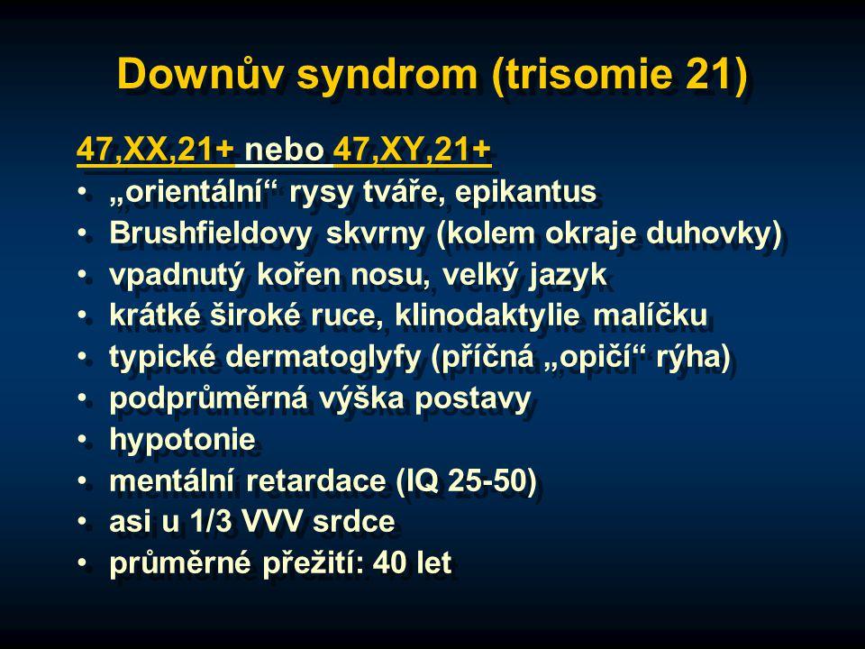 """Downův syndrom (trisomie 21) 47,XX,21+ nebo 47,XY,21+ """"orientální rysy tváře, epikantus Brushfieldovy skvrny (kolem okraje duhovky) vpadnutý kořen nosu, velký jazyk krátké široké ruce, klinodaktylie malíčku typické dermatoglyfy (příčná """"opičí rýha) podprůměrná výška postavy hypotonie mentální retardace (IQ 25-50) asi u 1/3 VVV srdce průměrné přežití: 40 let 47,XX,21+ nebo 47,XY,21+ """"orientální rysy tváře, epikantus Brushfieldovy skvrny (kolem okraje duhovky) vpadnutý kořen nosu, velký jazyk krátké široké ruce, klinodaktylie malíčku typické dermatoglyfy (příčná """"opičí rýha) podprůměrná výška postavy hypotonie mentální retardace (IQ 25-50) asi u 1/3 VVV srdce průměrné přežití: 40 let"""