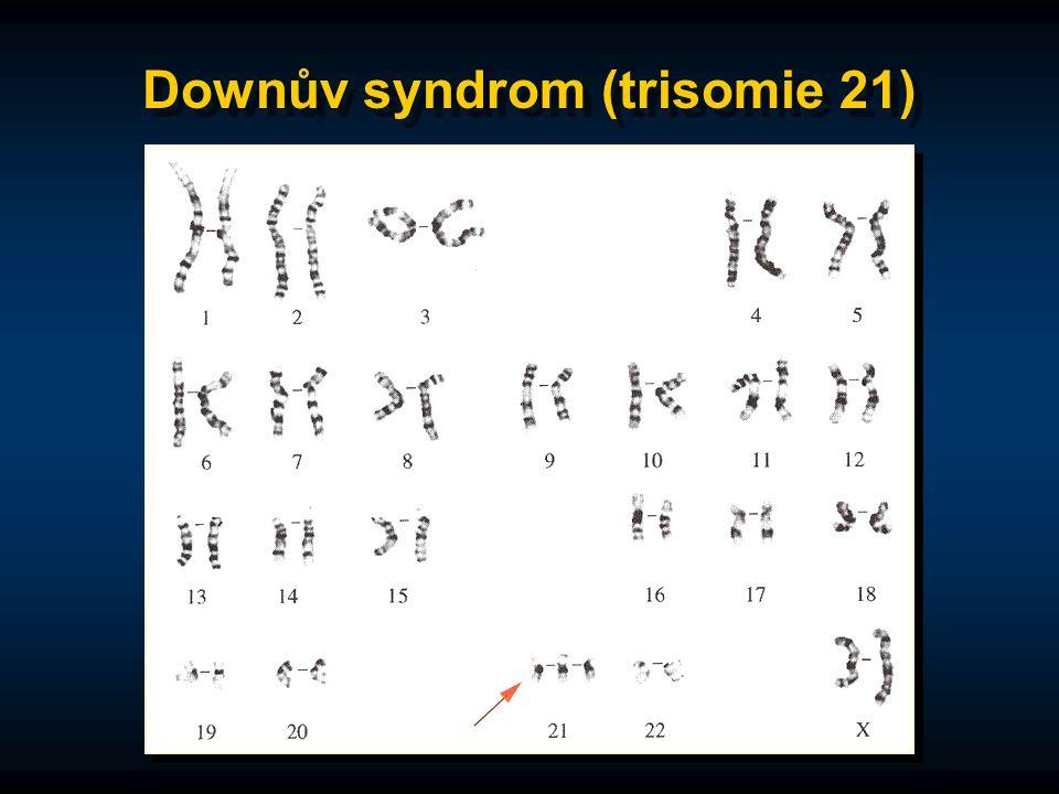 Downův syndrom (trisomie 21)