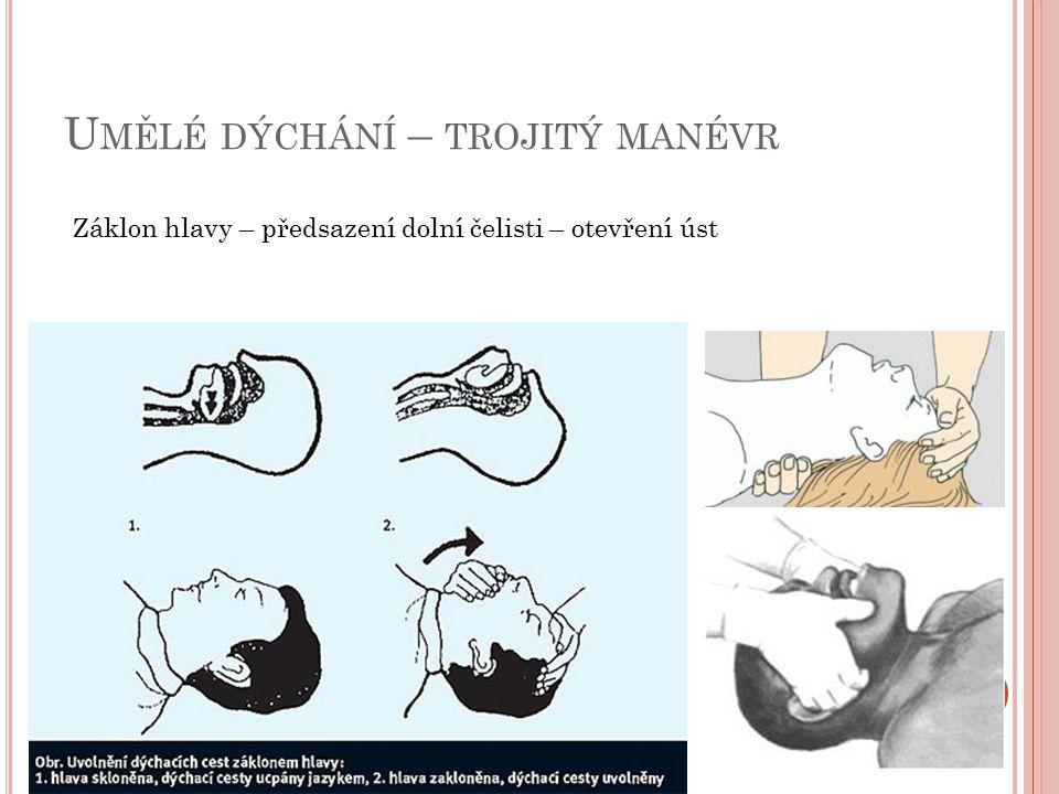 U MĚLÉ DÝCHÁNÍ – TROJITÝ MANÉVR Záklon hlavy – předsazení dolní čelisti – otevření úst
