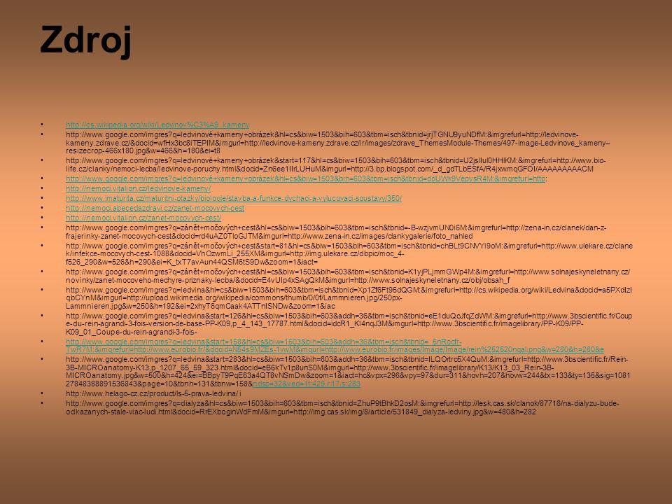 Zdroj http://cs.wikipedia.org/wiki/Ledvinov%C3%A9_kameny http://www.google.com/imgres?q=ledvinové+kameny+obrázek&hl=cs&biw=1503&bih=603&tbm=isch&tbnid