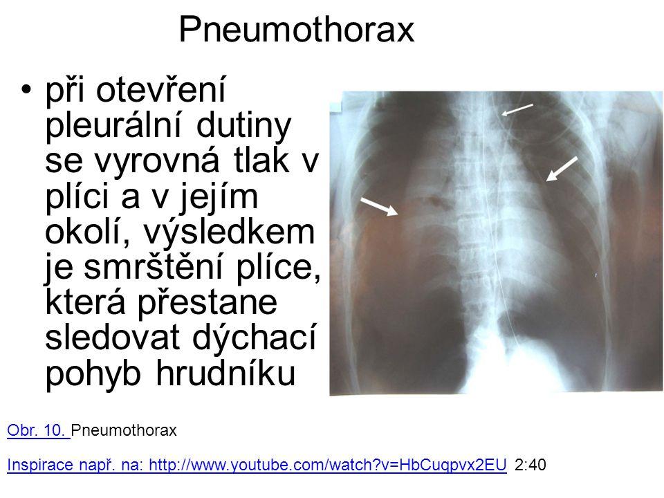 Pneumothorax při otevření pleurální dutiny se vyrovná tlak v plíci a v jejím okolí, výsledkem je smrštění plíce, která přestane sledovat dýchací pohyb