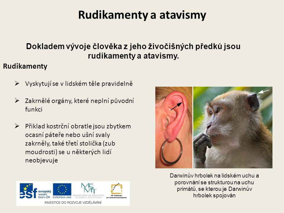Rudikamenty a atavismy Rudikamenty  Vyskytují se v lidském těle pravidelně  Zakrnělé orgány, které neplní původní funkci  Přiklad kostrční obratle
