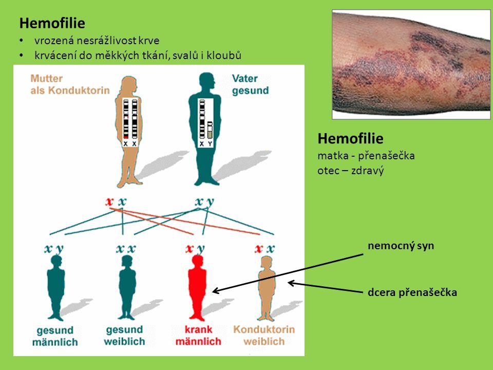 Hemofilie matka - přenašečka otec – zdravý nemocný syn dcera přenašečka Hemofilie vrozená nesrážlivost krve krvácení do měkkých tkání, svalů i kloubů