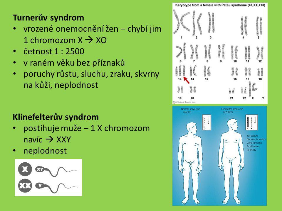 Turnerův syndrom vrozené onemocnění žen – chybí jim 1 chromozom X  XO četnost 1 : 2500 v raném věku bez příznaků poruchy růstu, sluchu, zraku, skvrny
