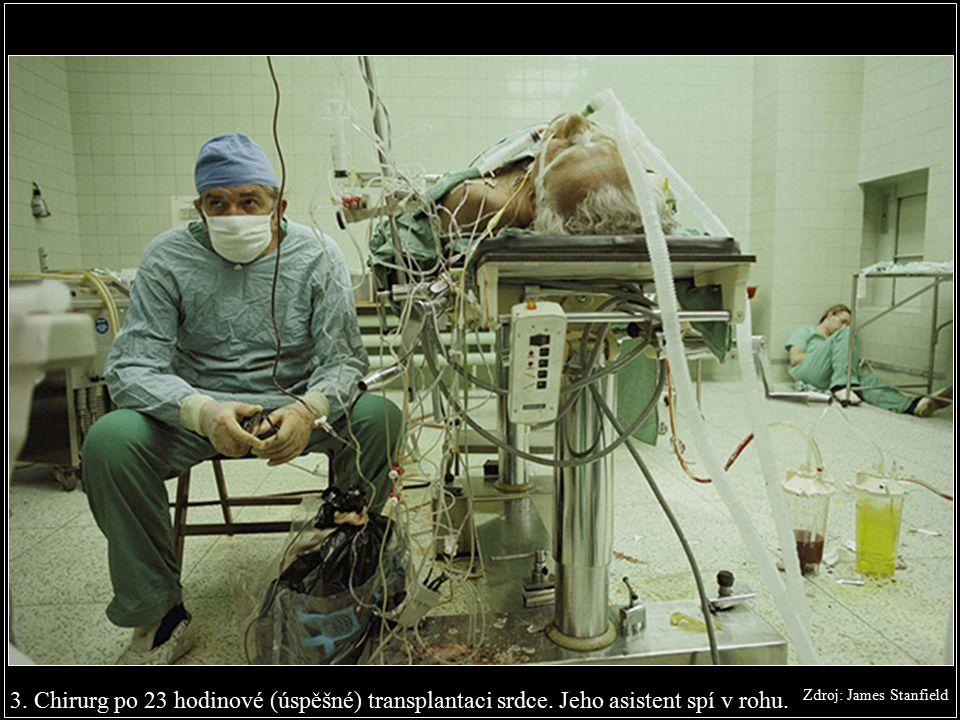3.Chirurg po 23 hodinové (úspěšné) transplantaci srdce.