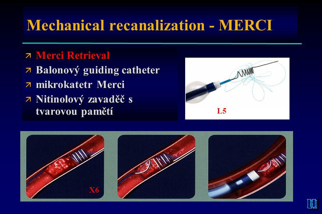 Mechanical recanalization - MERCI ä Merci Retrieval ä Balonový guiding catheter ä mikrokatetr Merci ä Nitinolový zavaděč s tvarovou pamětí L5 X6