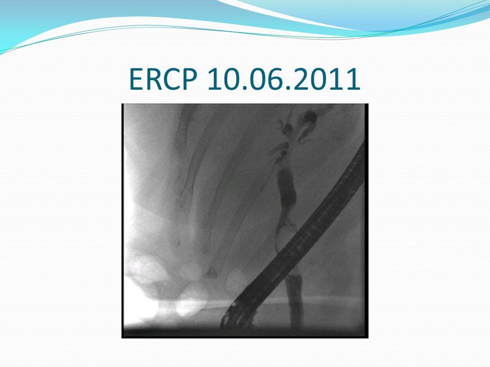 ERCP 10.06.2011