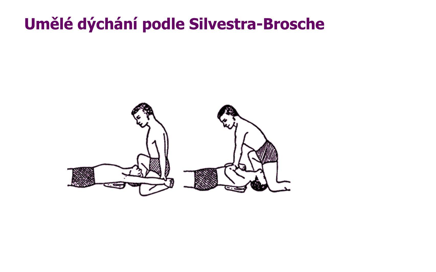 Umělé dýchání podle Silvestra-Brosche